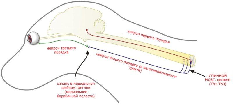 схема развития синдрома хорнера